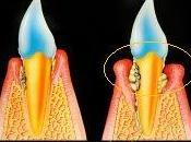 Tasca parodentale Parodontite