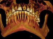 denti d'Egitto