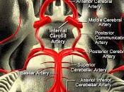 Vertigine vascolare