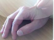 Reumatologia: ecco l'app calcolo Rodnan Skin Score modificato