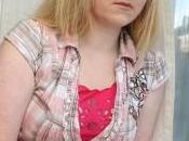 ragazza allergica alla proprie lacrime: diagnosi orticaria acquatica