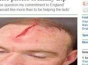 Rooney apre fronte polemica