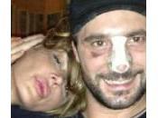 """Nina Moric Dossi, feriti incidente stradale: """"Dio protetti"""""""