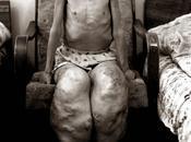 Chernobyl, nucleare disastri umani.