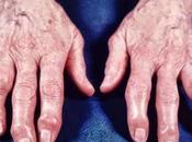 Artrite atrosi, Ascessi, Asma, trattarli essenziali Salute