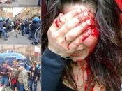 Bologna, cariche contro contestatori: volto repressivo renzismo