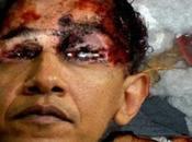 ULTIMA ORA: Barack Obama morto