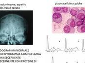 Eliminato delle cellule mieloma tramite trattamenti base cannabis
