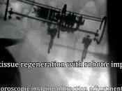 Robot medico stimola crescita organi rachitici