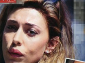 Belen Rodriguez rifatta labbra (come Nina Moric)?