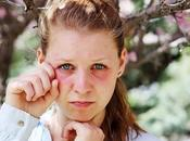 Pelli sensibili, allergie trucchi tossici consigli della Make Artist delle Spose Monica Cena