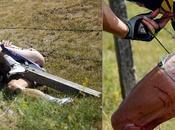 Tour France 2011: punti sutura Hoogerland
