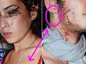 teme suicidio Blake Fielder-Civil, ex-marito Winehouse