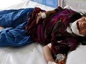 Mohammad Shoiab (REUTERS): Afghan girl awaits treatment Herat hospital, June 2010
