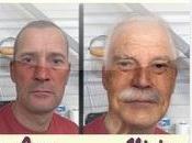 Gratuita Pagamento: Invecchiamento Viso Magic