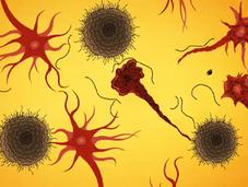Video: Alzheimer, come capirlo